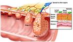 سرطان روده بزرگ اینگونه قابل پیشگیری است