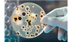 Antibiotic resistance  how has it become a global threat to public health