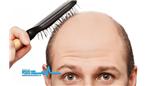 بی اثر بودن کمبود هورمون جنسی مردان بر رشد، ضخامت و ریزش مو