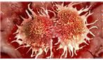 تبدیل بافت سرطانی به بافت سالم